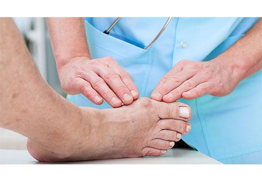 диагностика косточки на ноге