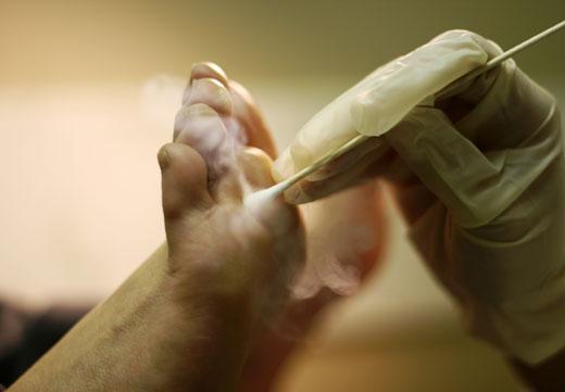 Криодеструкция нароста на пальце
