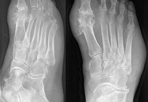 деформация стопы на рентгене