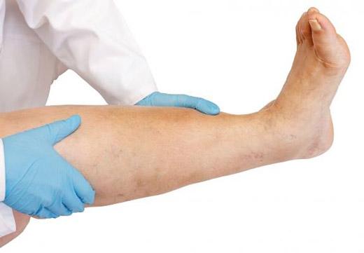 Опухлая нога