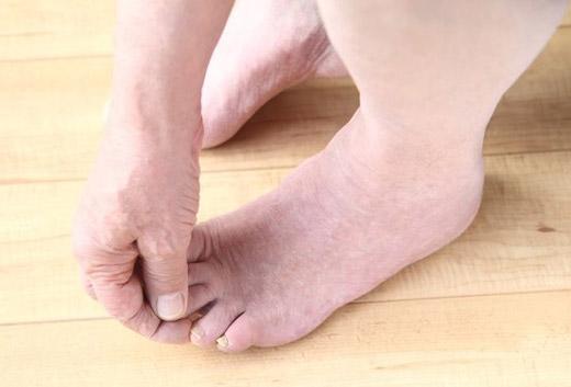 отмирание тканей на пальцах ноги