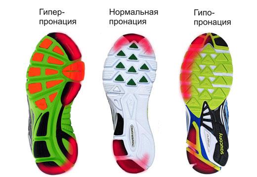 подошва кроссовок при недостаточной пронации