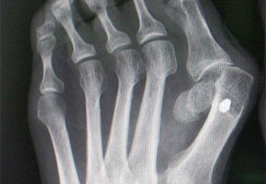 Рентген вальгуса на ноге