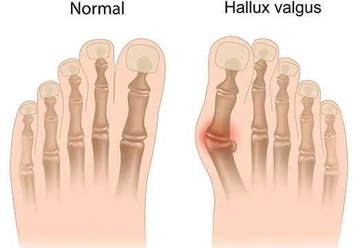 Как выглядит hallux valgus