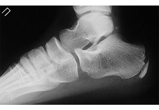 Рентген пятки