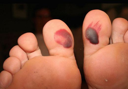 Кровавая мозоль на пальце ноги