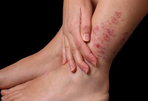Мазь от рожистого воспаления ноги: обзор аптечных и домашних мазей