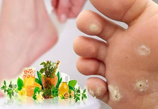 мозоли на ступнях и пальцах ног