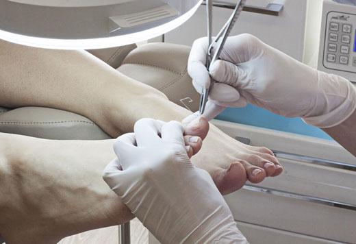 лечение нарыва на пальце ноги