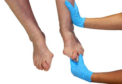 вальгусная деформация пальца на ноге