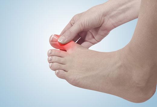 панариций на большом пальце ноги