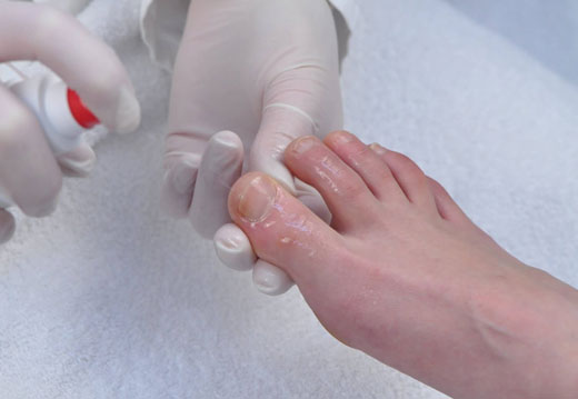 Обработка натоптыша на ноге