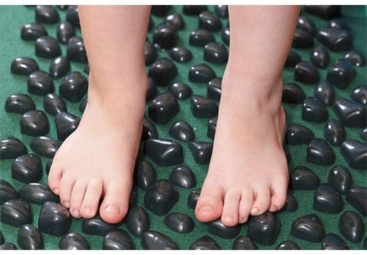 Лечение вальгуса стоп у ребенка