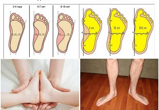 Положения ступни
