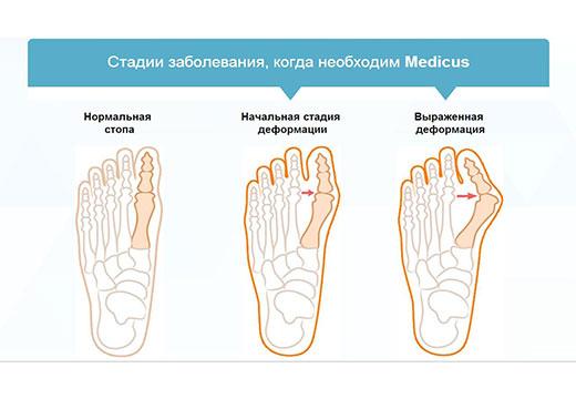 Как образуется шишка на большом пальце ноги