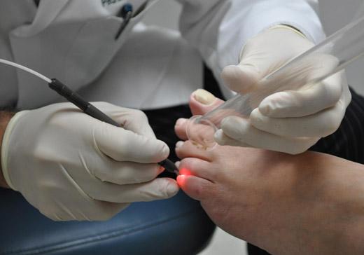лазерное удаление щипицы на пальце