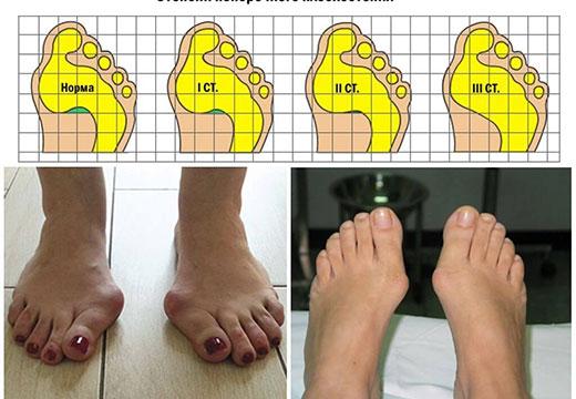 стадии деформации стопы