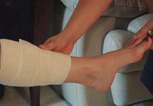 уход за ногой после операции