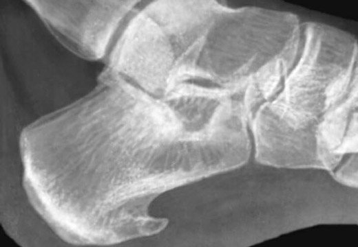 рентген шпоры на пятке