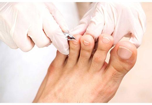 обстричь ногти на ногах