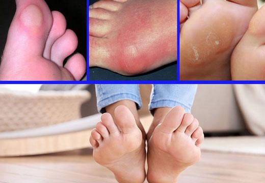 Уплотнение на ступнях и пальцах