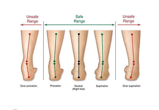 Разные деформации стопы