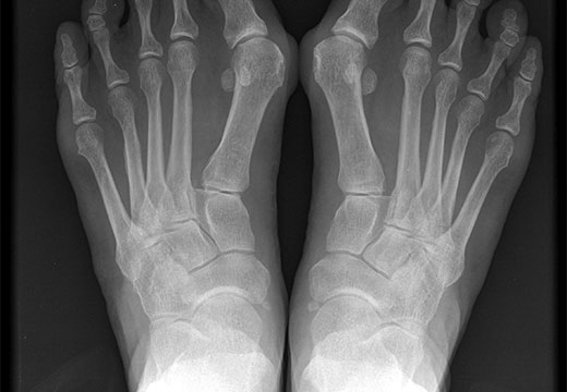 Вальгус на рентгене