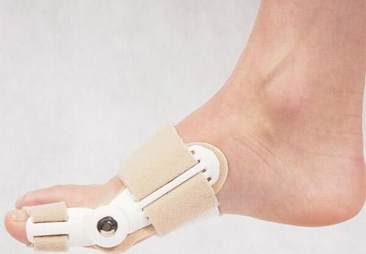 Коррекция косточки на ноге