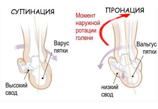 виды деформации стопы