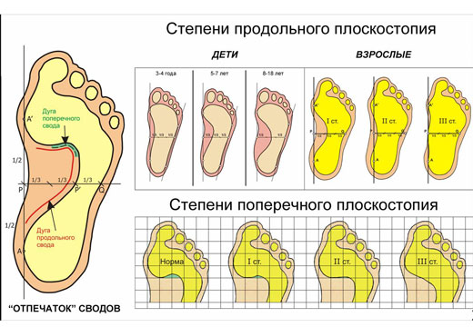степени продольного плоскостопия