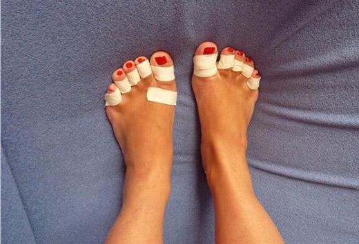 уход за мозолями между пальцев ног